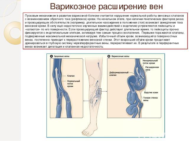 Варико зное расширение вен Пусковым механизмом в развитии варикозной болезни считается нарушение нормальной работы венозных клапанов с возникновением обратного тока (рефлюкса) крови. На начальном этапе, при наличии генетических факторов риска и пров…