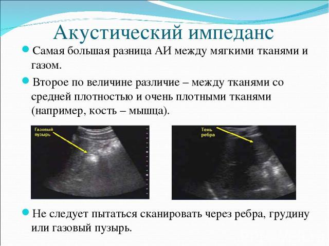 Акустический импеданс Самая большая разница АИ между мягкими тканями и газом. Второе по величине различие – между тканями со средней плотностью и очень плотными тканями (например, кость – мышца). Не следует пытаться сканировать через ребра, грудину …