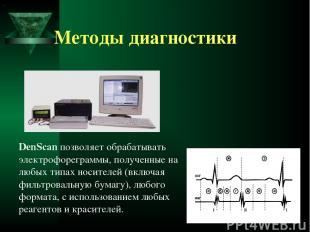 Методы диагностики DenScan позволяет обрабатывать электрофореграммы, полученные