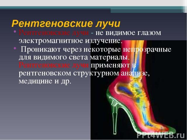 Рентгеновские лучи Рентгеновские лучи - не видимое глазом электромагнитное излучение. Проникают через некоторые непрозрачные для видимого света материалы. Рентгеновские лучи применяют в рентгеновском структурном анализе, медицине и др.