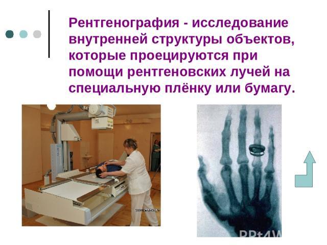 Рентгенография - исследование внутренней структуры объектов, которые проецируются при помощи рентгеновских лучей на специальную плёнку или бумагу.