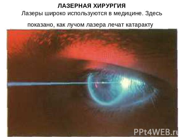 ЛАЗЕРНАЯ ХИРУРГИЯ Лазеры широко используются в медицине. Здесь показано, как лучом лазера лечат катаракту