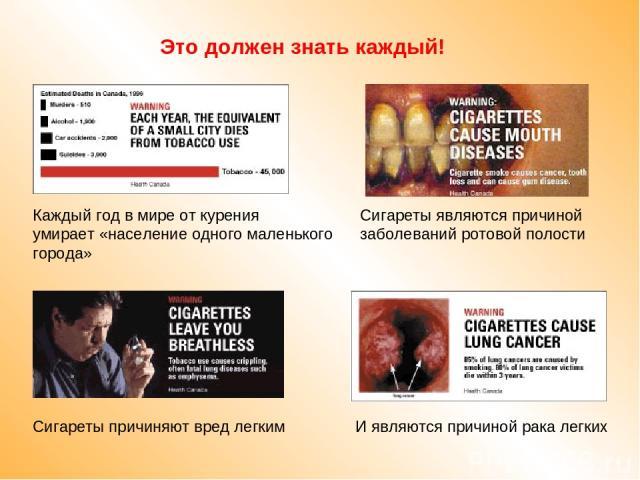 Это должен знать каждый! Каждый год в мире от курения умирает «население одного маленького города» Сигареты являются причиной заболеваний ротовой полости Сигареты причиняют вред легким И являются причиной рака легких