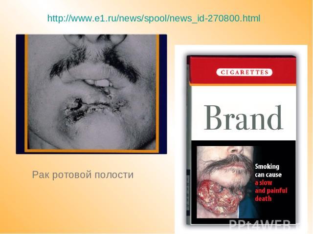 Рак ротовой полости http://www.e1.ru/news/spool/news_id-270800.html