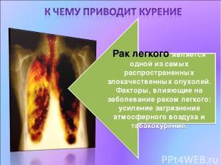 Рак легкого является одной из самых распространенных злокачественных опухолей. Ф