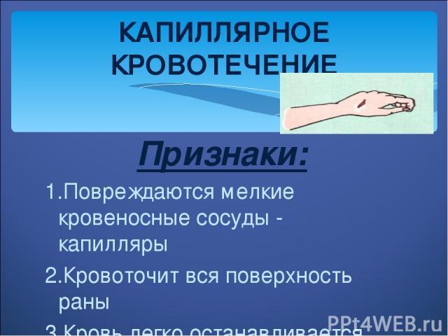 Признаки: 1.Повреждаются мелкие кровеносные сосуды - капилляры 2.Кровоточит вся поверхность раны 3.Кровь легко останавливается КАПИЛЛЯРНОЕ КРОВОТЕЧЕНИЕ