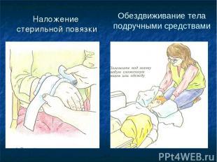 Наложение стерильной повязки Обездвиживание тела подручными средствами