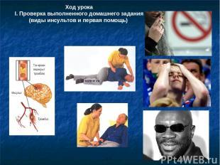 Ход урока І. Проверка выполненного домашнего задания (виды инсультов и первая по