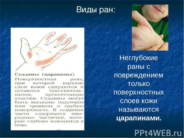 Неглубокие раны с повреждением только поверхностных слоев кожи называются царапинами. Виды ран: