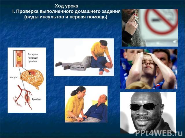 Ход урока І. Проверка выполненного домашнего задания (виды инсультов и первая помощь)