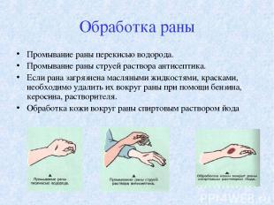 Обработка раны Промывание раны перекисью водорода. Промывание раны струей раство