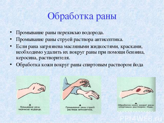 Обработка раны Промывание раны перекисью водорода. Промывание раны струей раствора антисептика. Если рана загрязнена масляными жидкостями, красками, необходимо удалить их вокруг раны при помощи бензина, керосина, растворителя. Обработка кожи вокруг …