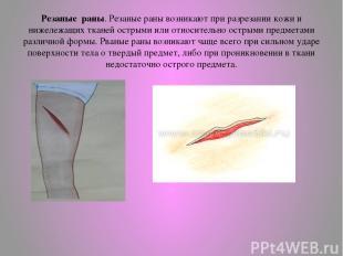 Резаные раны. Резаные раны возникают при разрезании кожи и нижележащих тканей ос