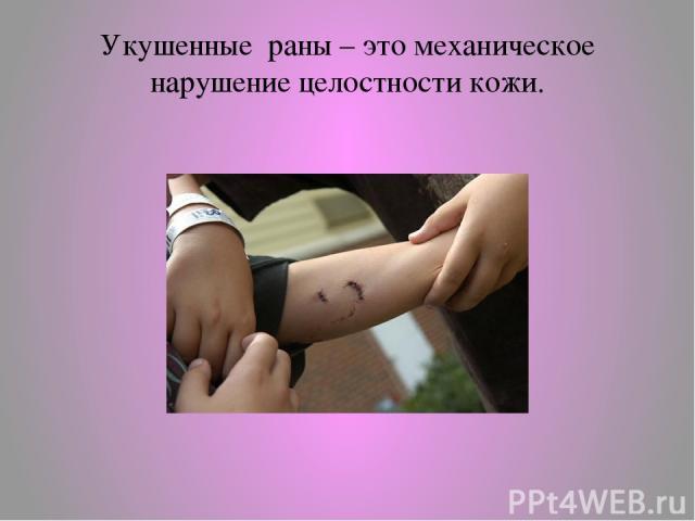 Укушенные раны – это механическое нарушение целостности кожи.