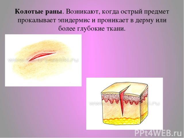 Колотые раны. Возникают, когда острый предмет прокалывает эпидермис и проникает в дерму или более глубокие ткани.