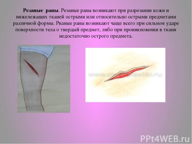 Резаные раны. Резаные раны возникают при разрезании кожи и нижележащих тканей острыми или относительно острыми предметами различной формы. Рваные раны возникают чаще всего при сильном ударе поверхности тела о твердый предмет, либо при проникновении …
