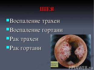 ШЕЯ Воспаление трахеи Воспаление гортани Рак трахеи Рак гортани