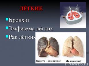 ЛЁГКИЕ Бронхит Эмфизема лёгких Рак лёгких