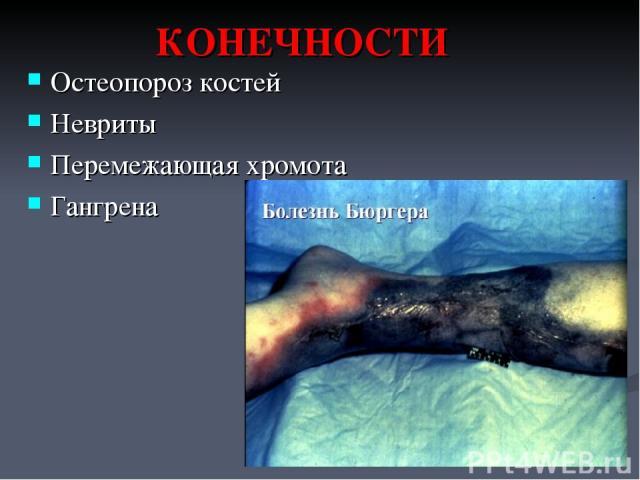 КОНЕЧНОСТИ Остеопороз костей Невриты Перемежающая хромота Гангрена