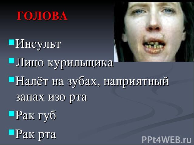 ГОЛОВА Инсульт Лицо курильщика Налёт на зубах, наприятный запах изо рта Рак губ Рак рта