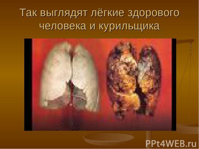 Так выглядят лёгкие здорового человека и курильщика