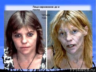 Лица наркоманов до и после Четыре года