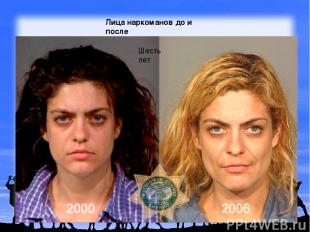 Лица наркоманов до и после Шесть лет