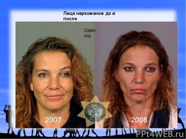 Лица наркоманов до и после Один год