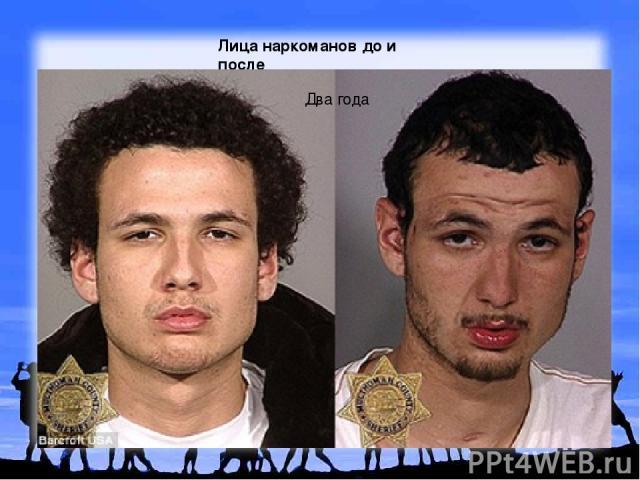 Лица наркоманов до и после Два года