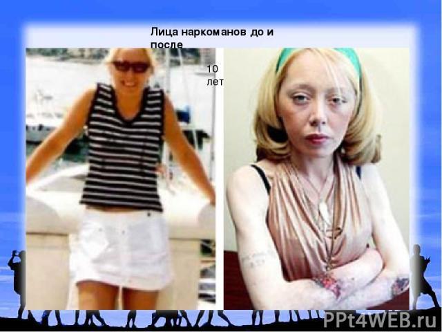 Лица наркоманов до и после 10 лет