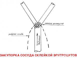 ЗАКУПОРКА СОСУДА СКЛЕЙКОЙ ЭРИТРОЦИТОВ