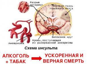 Схема инсульта АЛКОГОЛЬ + ТАБАК УСКОРЕННАЯ И ВЕРНАЯ СМЕРТЬ
