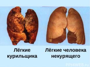 Лёгкие курильщика Лёгкие человека некурящего