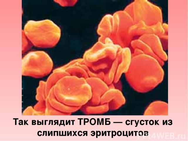Так выглядит ТРОМБ — сгусток из слипшихся эритроцитов