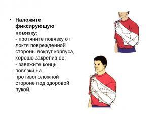 Наложите фиксирующую повязку: - протяните повязку от локтя поврежденной стороны