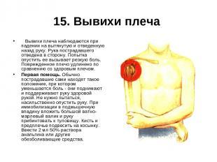 15. Вывихи плеча  Вывихи плеча наблюдаются при падении на вытянутую и отведенн