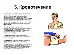5. Кровотечение - излияние (вытекание) крови из кровеносных сосудов при нарушени