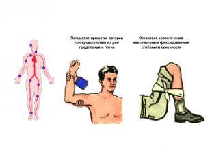 Пальцевое прижатие артерии при кровотечении из ран предплечья и плеча Остановка