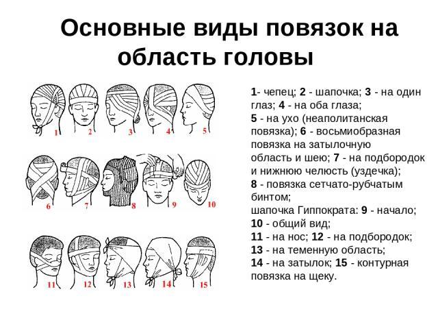 Основные виды повязок на область головы 1- чепец; 2 - шапочка; 3 - на один глаз; 4 - на оба глаза; 5 - на ухо (неаполитанская повязка); 6 - восьмиобразная повязка на затылочную область и шею; 7 - на подбородок и нижнюю челюсть (уздечка); 8 - повя…