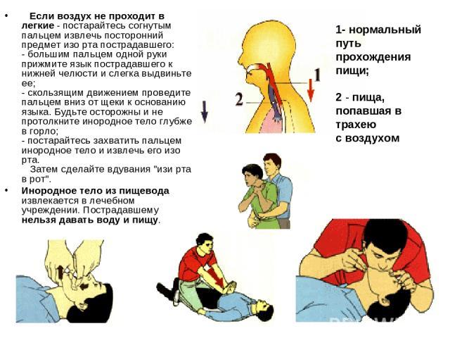 Если воздух не проходит в легкие - постарайтесь согнутым пальцем извлечь посторонний предмет изо рта пострадавшего: - большим пальцем одной руки прижмите язык пострадавшего к нижней челюсти и слегка выдвиньте ее; - скользящим движением проведите …