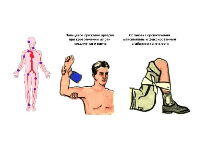 Пальцевое прижатие артерии при кровотечении из ран предплечья и плеча Остановка кровотечения максимальным фиксированным сгибанием конечности