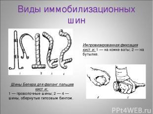 Виды иммобилизационных шин Шины Белера для фаланг пальцев кисти: 1 — проволочные
