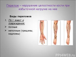 Перелом – нарушение целостности кости при избыточной нагрузке на нее Виды перело