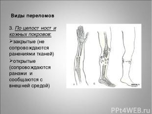 Виды переломов 3. По целостности кожных покровов: закрытые (не сопровождаются ра