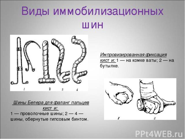 Виды иммобилизационных шин Шины Белера для фаланг пальцев кисти: 1 — проволочные шины; 2 — 4 — шины, обернутые гипсовым бинтом. Импровизированная фиксация кисти: 1 — на комке ваты; 2 — на бутылке.