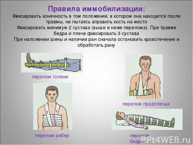 Правила иммобилизации: Фиксировать конечность в том положении, в котором она находится после травмы, не пытаясь вправить кость на место Фиксировать минимум 2 сустава (выше и ниже перелома). При травме бедра и плеча фиксировать 3 сустава При наложени…