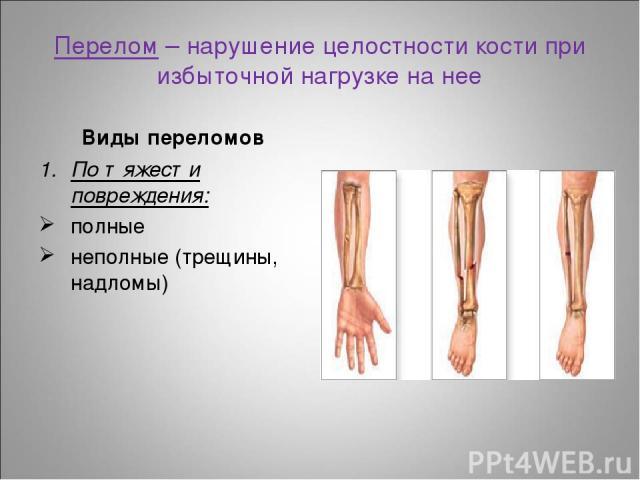Перелом – нарушение целостности кости при избыточной нагрузке на нее Виды переломов По тяжести повреждения: полные неполные (трещины, надломы)