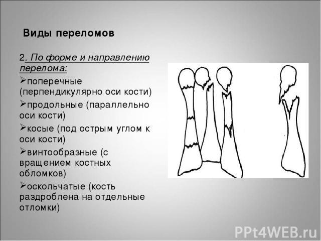 Виды переломов 2. По форме и направлению перелома: поперечные (перпендикулярно оси кости) продольные (параллельно оси кости) косые (под острым углом к оси кости) винтообразные (с вращением костных обломков) оскольчатые (кость раздроблена на отдельны…
