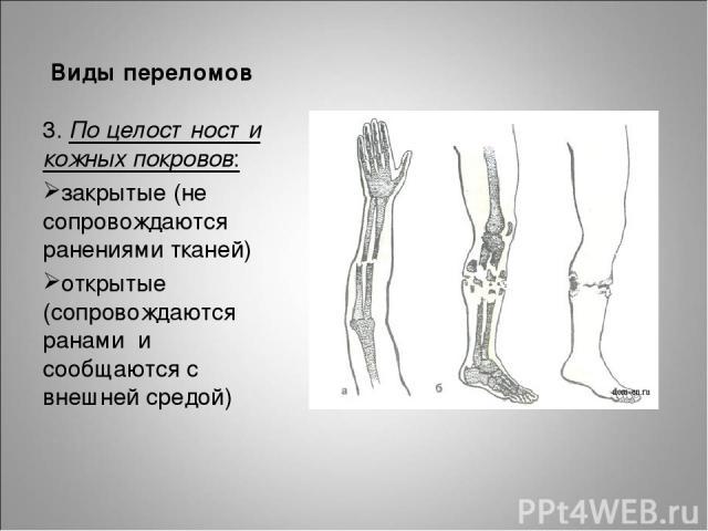 Виды переломов 3. По целостности кожных покровов: закрытые (не сопровождаются ранениями тканей) открытые (сопровождаются ранами и сообщаются с внешней средой)