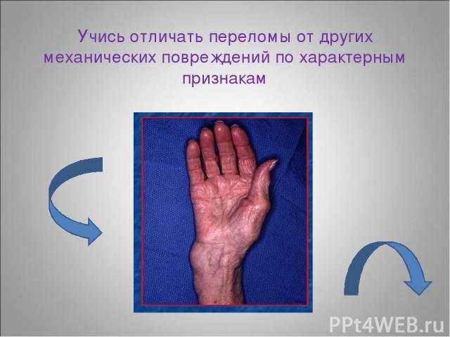 Учись отличать переломы от других механических повреждений по характерным признакам